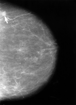 Bröstcancer (tumör vid pilen). Foto: NIH Senior Health/Wikimedia Commons